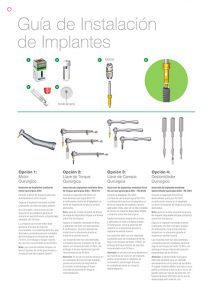 guia-instalacion-implantes